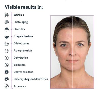 Nanopore-Consumer-visible-results